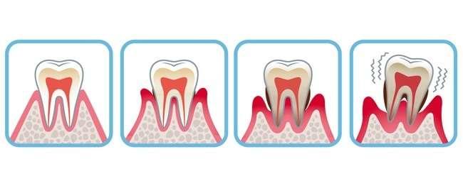 déplacement dentaire spontané